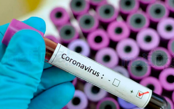 How Coronavirus is Affecting E-Commerce Businesses and How They Can Adapt